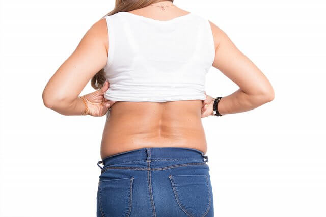 How to get rid of back fat?